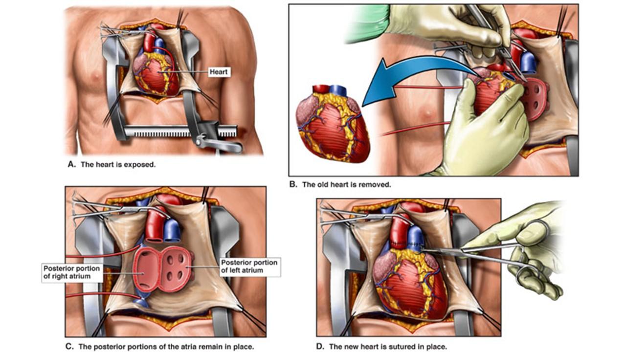 روش انجام جراحی پیوند قلب