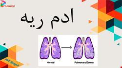 تنفس | دانلود پاورپوینت پرستاری درمورد ادم ریه