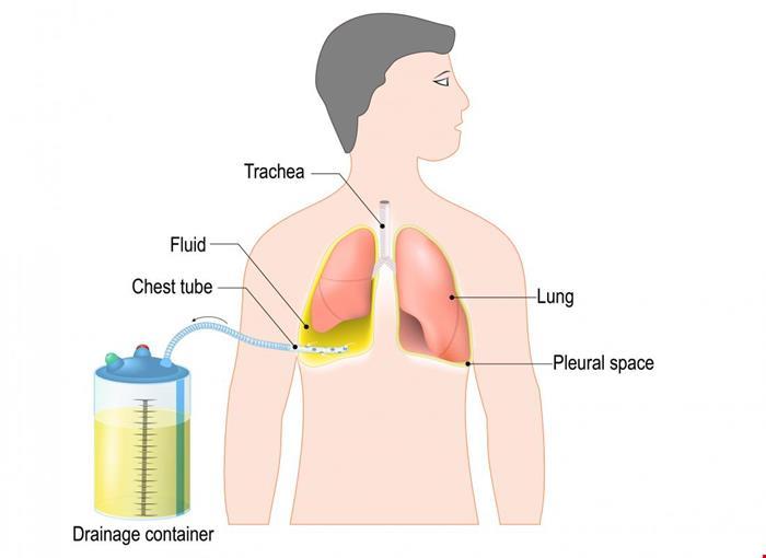 تنفس | دانلود پاورپوینت پرستاری در مورد چست تیوب و مراقبت های پرستاری آن