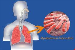 عفونی | دانلود پاورپوینت مایکوباکتریوم توبرکلوزیس و بیماری سل