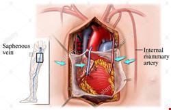 قلب | دانلود پاورپوینت تخصصی پرستاری در مورد مراقبت های پرستاری بیمار CABG (پیوند عروق کرونر قلب )