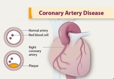 قلب | دانلود پاورپوینت پرستاری در مورد مراقبت از بیماران مبتلا به اختلالات عروق کرونر